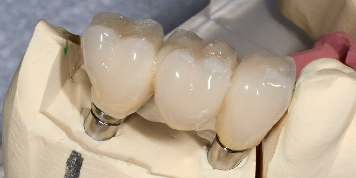 Implant Supported Bridge on Clay Model
