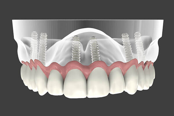 Dental Implant Supported Dentures in Morgan Hill